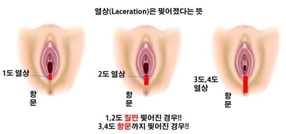 회음부절개-회음부열상.jpg