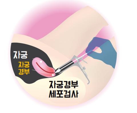 자궁경부 세포검사, 세포도말 검사 Pap test