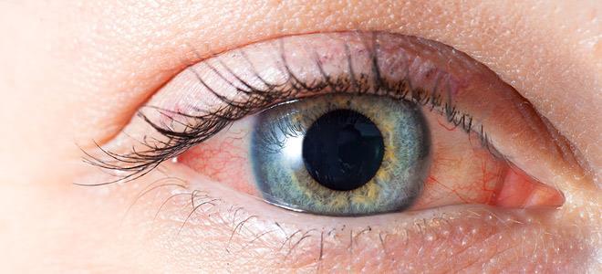 red eye wom 660