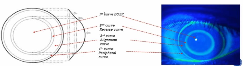 Anatomy of Orthokeratology lens