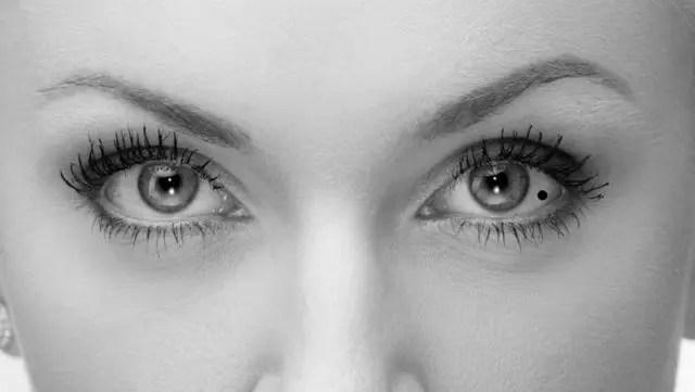 女性の目 目尻側の目の中のほくろ