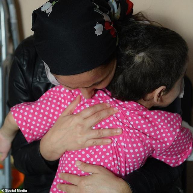 halasi tarafindan 6 ay boyunca dovulup uzvu 13780904 5883 m - Dayakçı hala, 7 yaşındaki kız çocuğunun hayatını kararttı! Kangren yüzünden kolunu kaybetti