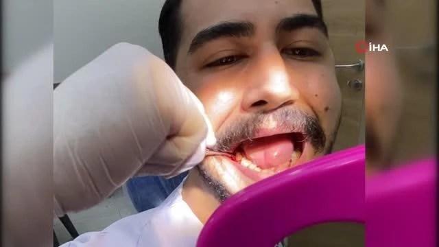 Diş hekimi ağrıyan 20'lik dişini kendi çekti
