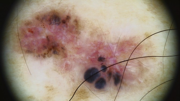 Pigmented basal cell carcinoma