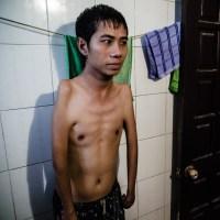 Agente Naranja, la guerra de Vietnam aún no ha terminado (II parte)