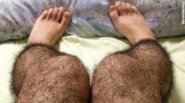 Hairy Leggings: Soll aufdringliche Männer abschrecken - ehrlich jetzt!