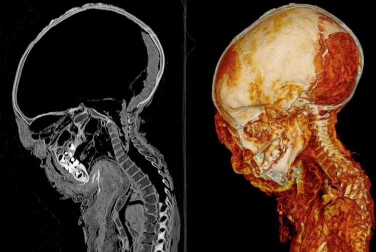 Les scanners modernes permettent une extraordinaire tomographie par rayons X de la momie déjà étudiée en 1896. © S. Zesch et al, Euro. J. Radiol, Open 2016