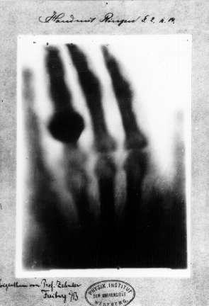 1895 : découverte des rayons X par Röntgen et début de la radiographie