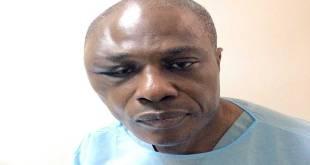 Martin FAYULU dit Mafa, Candidat commun de l'opposition à la présidentielle du 23 décembre 2018, blessé au visage par la police de Joseph KABILA.
