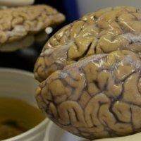 Des chercheurs créent un cerveau de foetus en laboratoire