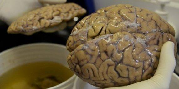 Un scientifique manipule un cerveau