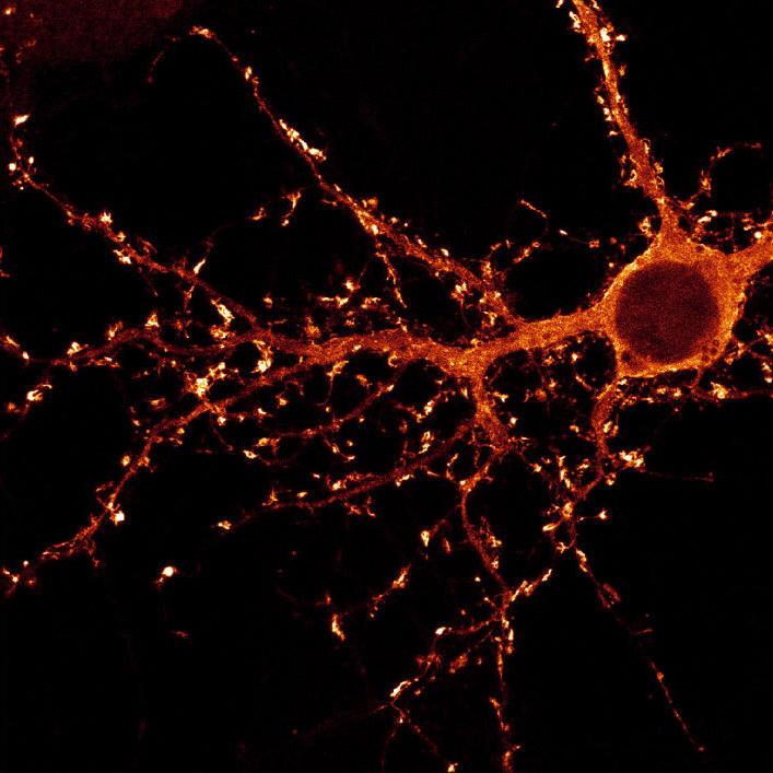 Neuron © D. Choquet (CNRS)