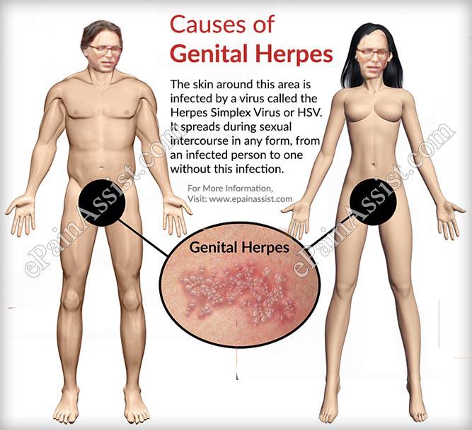causes-of-genital-herpes