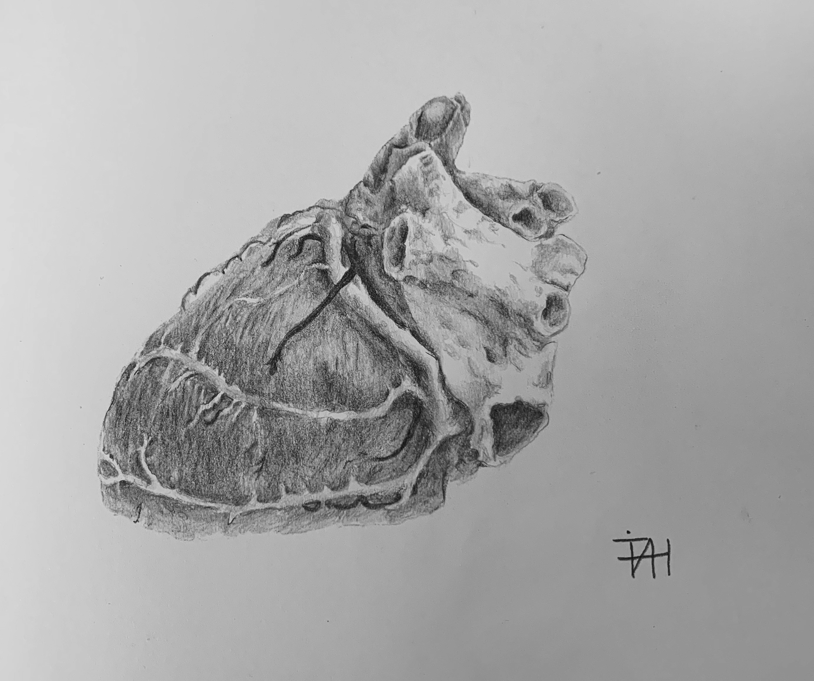 cardiac sketch
