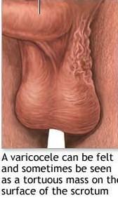 Symptoms-Varicocele