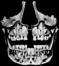 frauenfiguren ursula franklin zähne