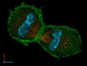 frauenfiguren leah keshet cytoskelett