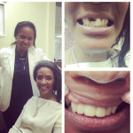 Dr. Heavenly Hooks Momma Dee Up With a New Smile!