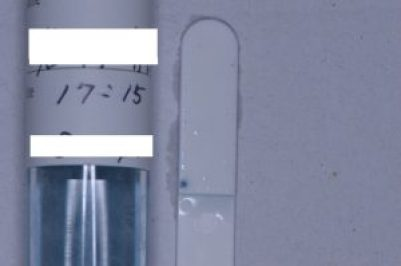 虫歯菌の検査方法