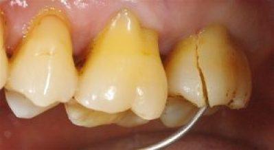 どこにも虫歯がない、って言われたのに、何でこんなに痛いの?