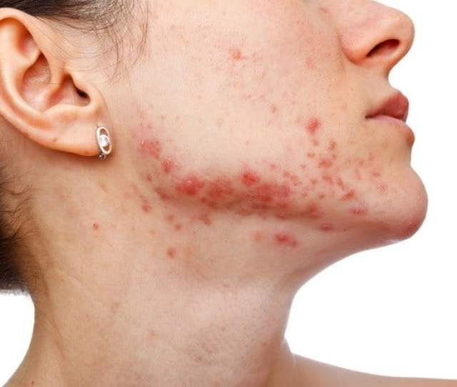 Is It Time For Better Skin Tried Everything And Its Not Improving Chinese Medicine Can Help
