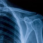 A skeletal x-ray focussing on the shoulder.