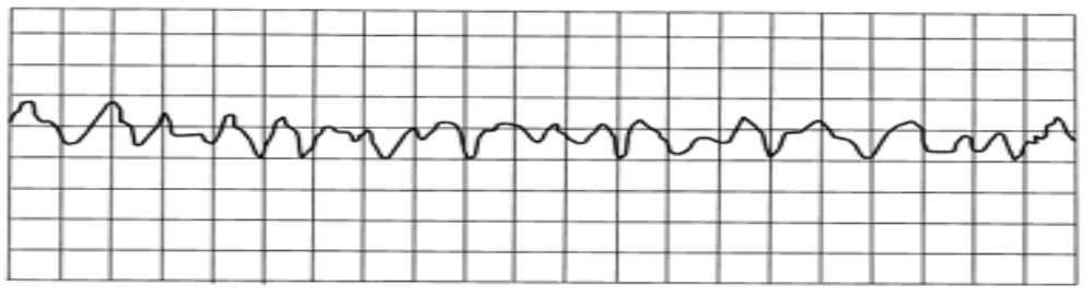 ECG: Ventricular fibrillation