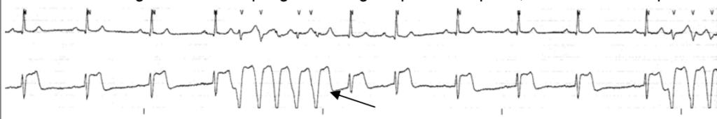 ECG: Ventricular tachycardia (VT)