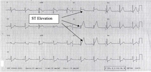 ECG: ST Elevation