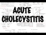 Acute Cholecystitis