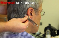 Rinnes and Webers test – Physical Exam