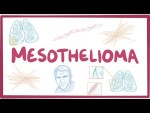 Mesothelioma - causes, symptoms, diagnosis, treatment, pathology