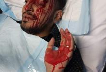 Photo of شاهد بالصورة … طعن مقيم يمني في الرياض وسرقة ما بحوزته من أموال …صورة