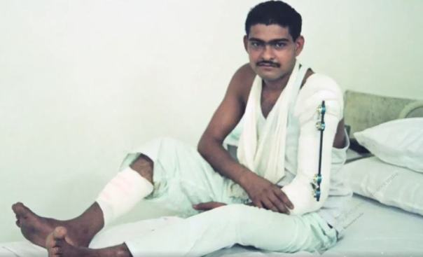 19 years old Yogendra Singh Yadav at the Army Hospital, Delhi