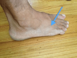 Running Injury - Top of the Foot and Ankle Pain ...