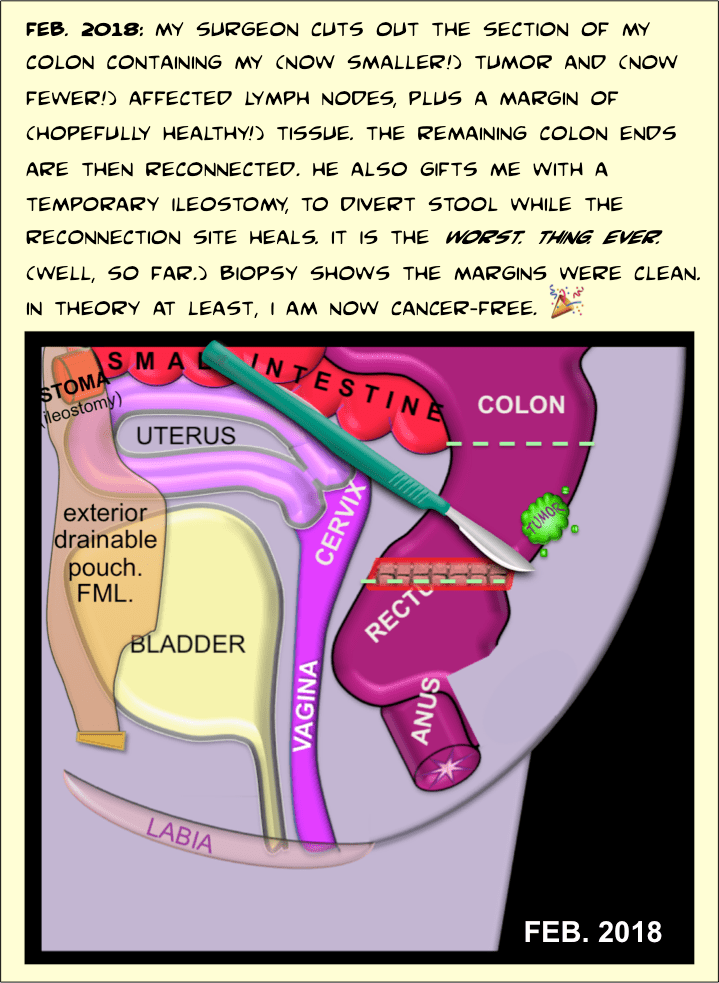 """FEB. 2018: My surgeon cuts out the section of my colon containing my (now smaller!) Tumor and (now fewer!) Affected lymph nodes, plus a margin of (hopefully healthy!) Tissue. The remaining colon ends are then reconnected. He also gifts me with a temporary ileostomy, to divert stool while the reconnection site heals. It is the worst. Thing. Ever. (Well, so far.) Biopsy shows the margins were clean. In theory at least, I am now cancer-free. [PARTY HORN EMOJI] [IMAGE: same image as second panel (female pelvis with bright green colorectal tumor and lymphs), except tumor is much smaller and only three lymph nodes remain. A scalpel is pictured along with a line of stitches at the colon reconnection site. Also pictured on the far left upper corner of the drawing is a stub-like protrusion from the small intestine, labeled """"STOMA (ileostomy)"""" covered by a beige, semi-transparent amorphous shape, labeled """"exterior drainable pouch. FML.""""]"""