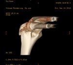 elbowscan