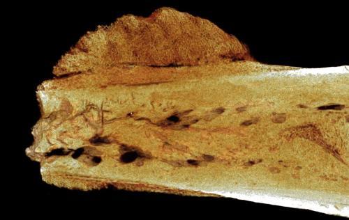 hominin-cancer-bone