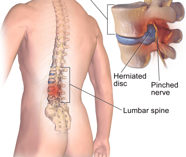 Lumbar Herniated Disc Summary Of Symptoms Diagnosis And Treatment