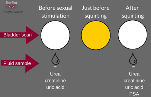 is vaginal squirting urine