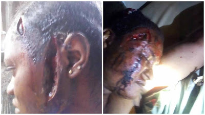 PHOTOS: Unknown Assailants Machete 2 Women In Ibadan