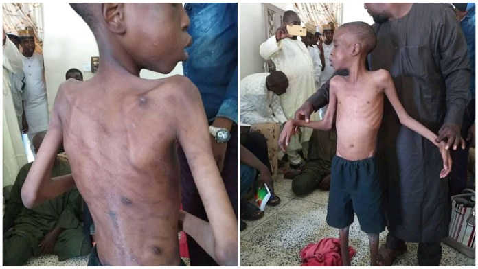 Police Rescue Boy Abused By His Father And Stepmothers In Borno State