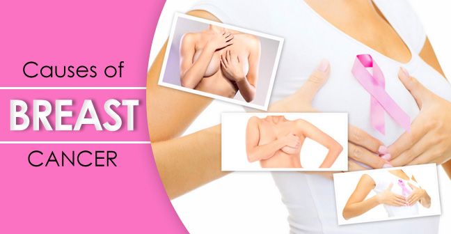 Effective Breast Cancer Treatment For Perfect Cure 1