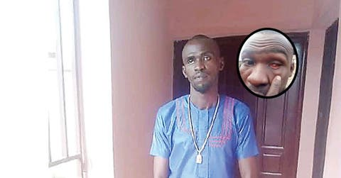 How SARS Took My Eye, Framed Me For Armed Robbery – Ex-Corps Member