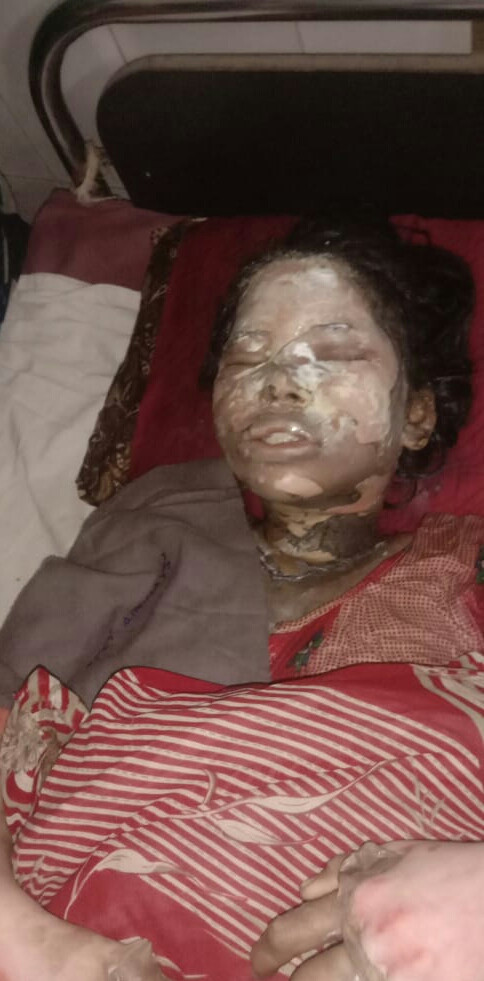 Graphic Photo: Man Sets 15-year-old Girl Ablaze For Rejecting His Sexual Advances