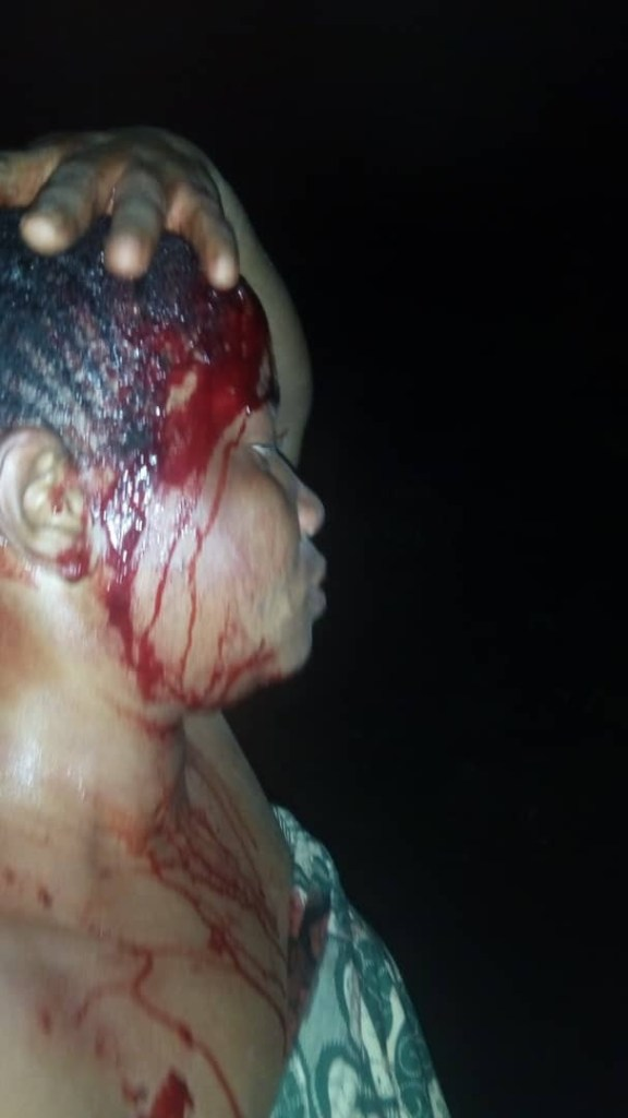 Man Attacked His Wife With Cutlass, Threatened To Kill Her And Their Children