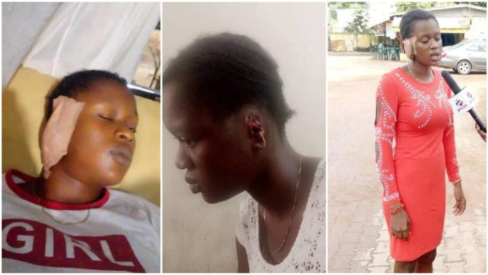 Ex Police Officer Bites Off 18-year-old Girl's Ear During Quarrel In Edo