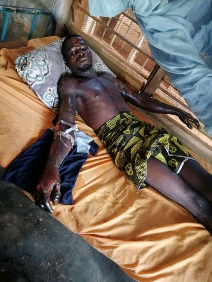 Lady Set Boyfriend Ablaze Over Refusal To Marry Her Due To Her Hatred Towards His Mother (Photos