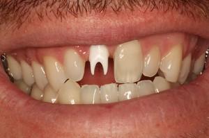 PFZ Crown on Zirconia Implant Abutment - Before