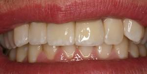 Implant Bridge - After